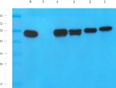 Western Blot Tips and Tricks